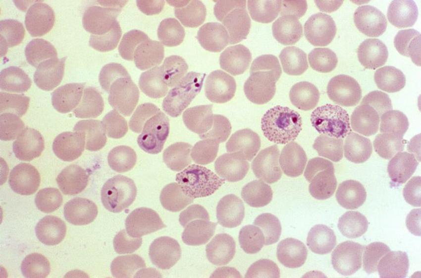 células infestadas por malaria debido al mosquito Anopheles